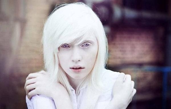 Интересные факты из жизни альбиносов